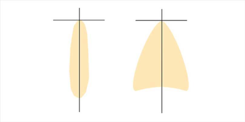 Diagram of Aculux AX precision optics